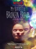 My Beautiful Broken Brain - 2014